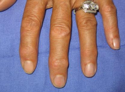 arthrose génétique