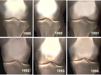 Évolution d'une gonarthrose