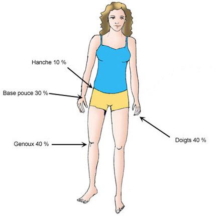 localisation arthrose chez la femme