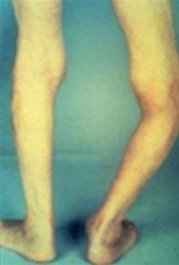 Arthrose du genou ou de la hanche