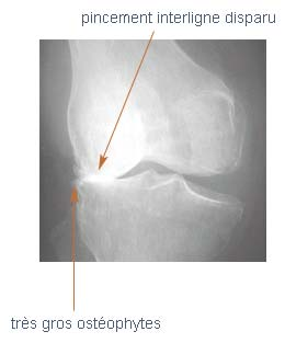 Gonarthrose fémoro-tibiale externe