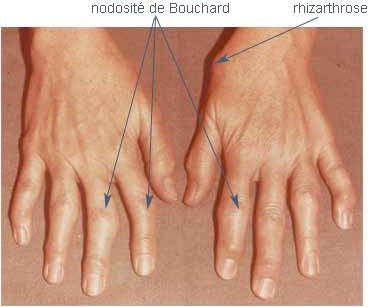 Nodosités de Bouchard