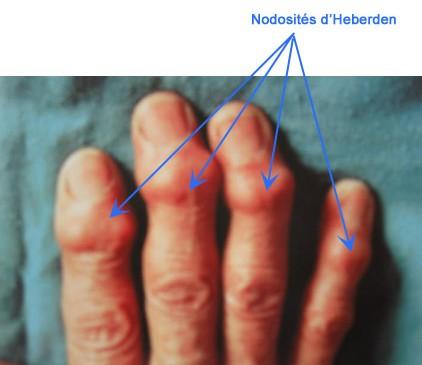 Types d'arthrose