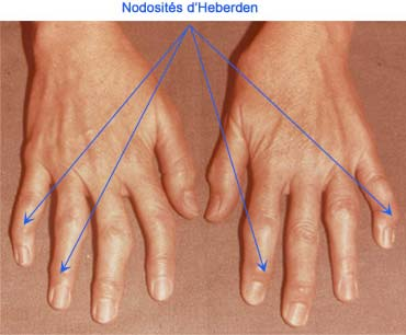 Nodosités d'Heberden