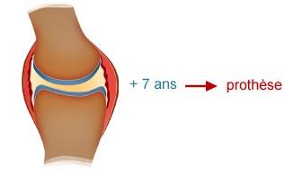 prothèse genou