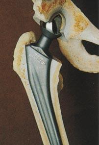 Prothèses