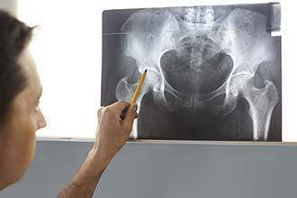 radiographie de la hanche