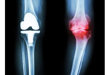 La pose d'une prothèse de genou augmenterait le risque cardiaque
