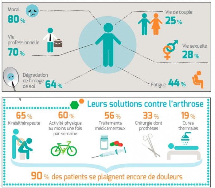 arthrose-infographie
