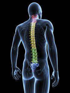 L'arthrose du dos