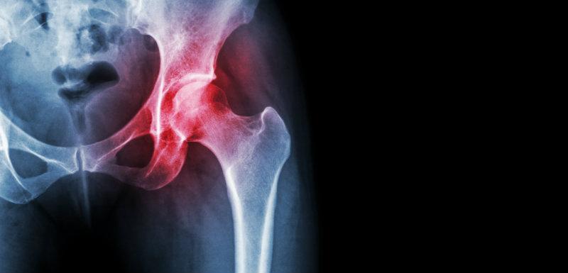 Arthrose de la hanche