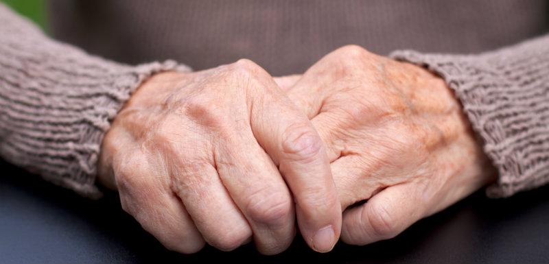 L'intérêt des corticoïdes dans l'arthrose érosive des mains
