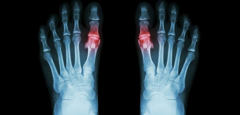 Arthrose : les anti-inflammatoires augmentent-ils le risque cardiovasculaire ?